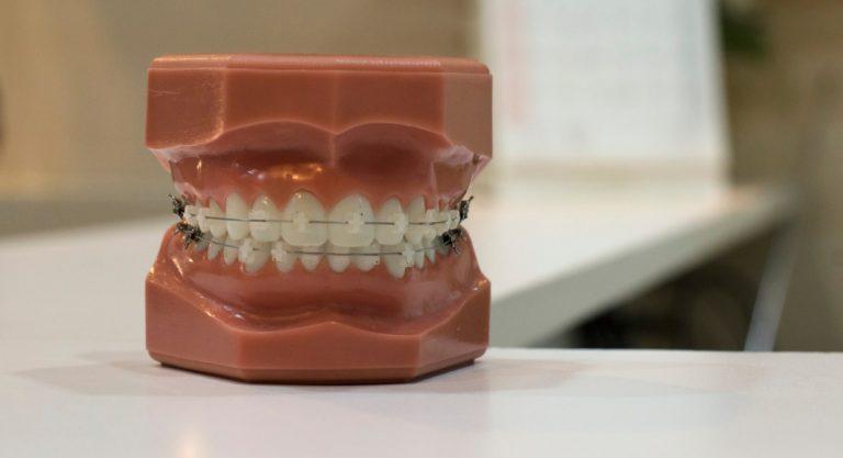 Orthodontist vs Do-It-Yourself Braces